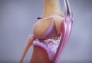 Osteoartitida: léčba bolesti pomocí monoklonálních protilátek